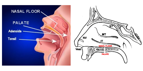 nasal floor expansion